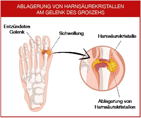 Harnsäurekristalle lagern sich häufig am Zehgelenk ab.